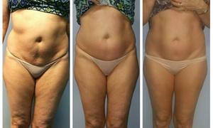 Ella Bardo Esthetics & Wellness: Up to 52% Off body scuplting at Ella Bardo Esthetics & Wellness