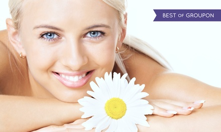 Two, Four, or Six IPL Photofacials at Laser 528 (Up to 91% Off)