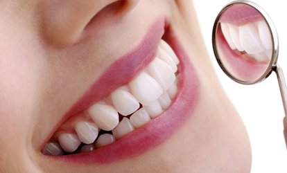 image for Laser Teeth Whitening with an Optional Check-Up, Scale and Polish at White Smile Clinic