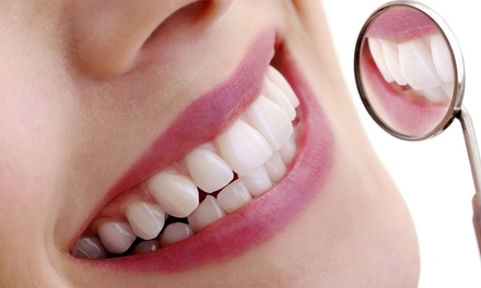 Laser Teeth Whitening with an Optional Check-Up, Scale and Polish at White Smile Clinic