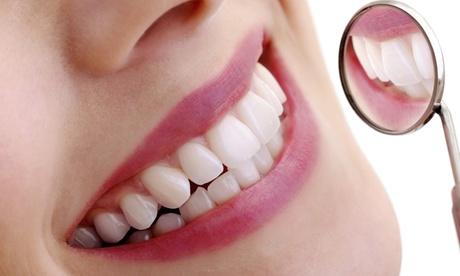 1 o 2 sesiones de blanqueamiento led y 1 o 2 limpiezas bucales desde 49,95 € en Instituto Médico Dentalis