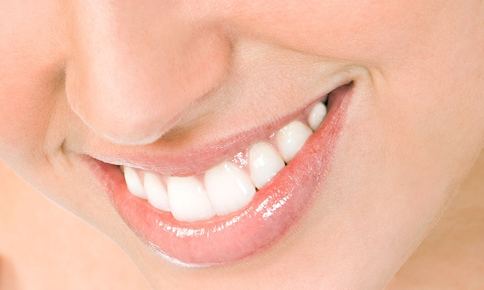 Covina Smile - Covina-Valley: Dental Checkup or In-Office Teeth-Whitening Treatment at Covina Smile (Up to 87% Off)