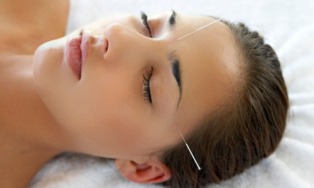 One or Three Acupuncture Sessions at Shiva Wellness Center(Up to 85% Off)