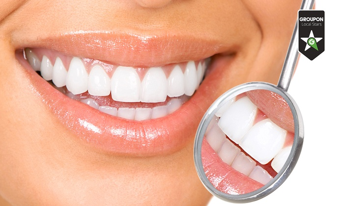 Studio Odontoiatrico Laloe - Studio Odontoiatrico Laloè: Fino a 4 impianti dentali in titanio da 399 €