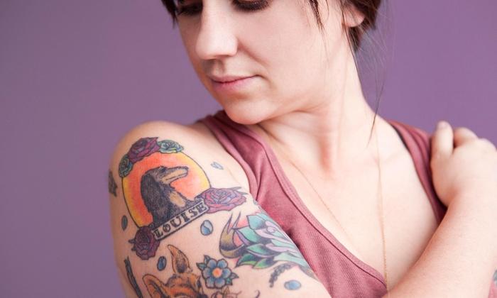 Morphd LLC - Saint Louis: Two Laser Tattoo-Removal Treatments at Morphd LLC (50% Off)