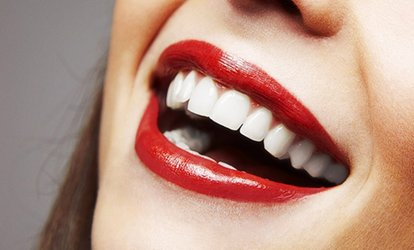 image for Teeth Whitening with a Check-Up and Two Xrays at Smileright (70% Off)