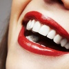 Teeth Whitening, 68% Off