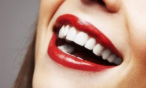 Smileright Cardiff: Teeth Whitening With Check Up for £99 at Smileright