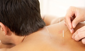 Green Jade Acupuncture: One Acupuncture Session with Option for Massage at Green Jade Acupuncture (Up to 68% Off)