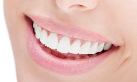 Una o 2 visite odontoiatriche con in più sbiancamento da Studio Dentistico (sconto fino a 84%). Valido in 2 sedi