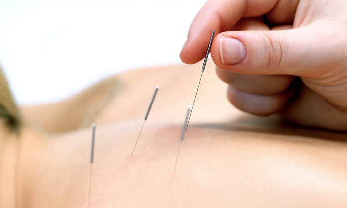 Chicago InHealth Center - Downtown: One or Three Acupuncture Treatments with Exam and Consultation at Chicago InHealth Center (Up to 63% Off)