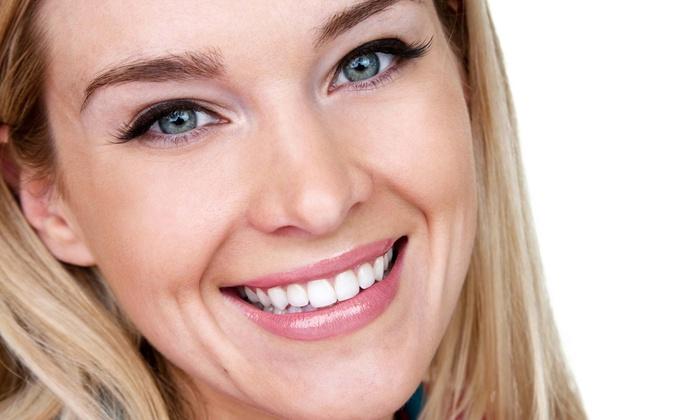 Smile White Now Teeth Whitening Salon - Albuquerque: Take-Home Teeth-Whitening Kit or an In-Salon Treatment (Up to 76% Off)