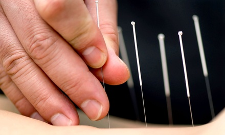 $39 for Initial Assessment, Massage, and Acupuncture at University Traditional Chinese Medicine Clinic ($190 Value)