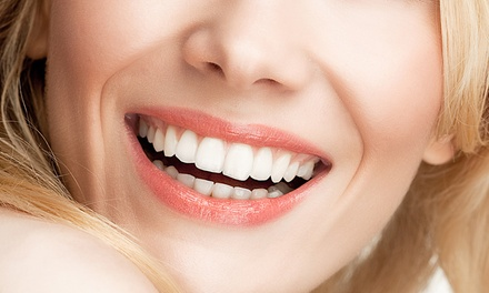 $98 for Non-Peroxide LED Teeth Whitening at SIMPLY Aesthetics (worth $488) in Capitol Piazza. More Options Available