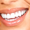 Up to 90% Off Zoom! Teeth Whitening or Dental Exam