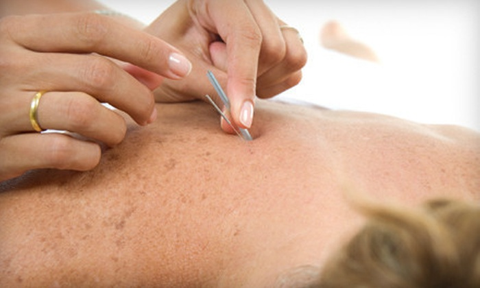 Regen Acupuncture PC - Flushing: One, Three, or Six Acupuncture Treatments with Consultation at Regen Acupuncture PC (Up to 87% Off)