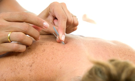 One or Two 75-Minute Acupuncture Sessions at Seattle Institute of Oriental Medicine (Up to 64% Off)