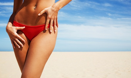 Laser Hair Removal, W2