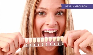 Private Dental Clinic: Private Dental Clinic: LED (from £69) or ZOOM! (from £109) Laser Teeth Whitening (Up to 84% Off)