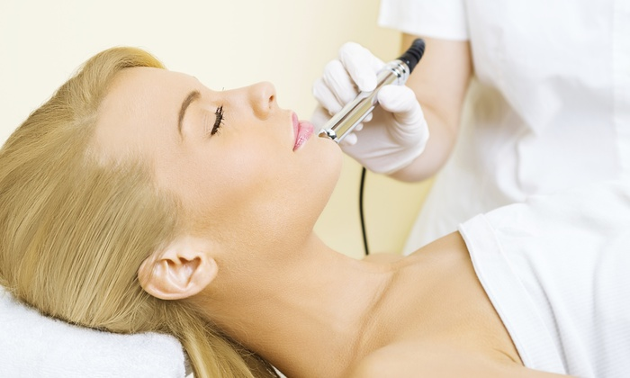 Aesthetics by Katerina - Center Square: One or Four Microdermabrasion Treatments at Aesthetics by Katerina (Up to 57% Off)