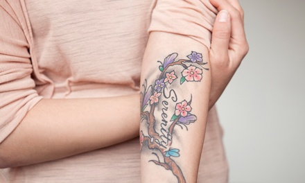 Three Laser Tattoo-Removal Treatments at LaserTouch Aesthetics (Up to 72% Off). Three Options Available.