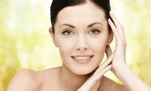Above & Beyond Medi, Wellness, and Beauty Spa: Three or Six IPL Photofacials at Above & Beyond Medi, Wellness, and Beauty Spa (Up to 69% Off)