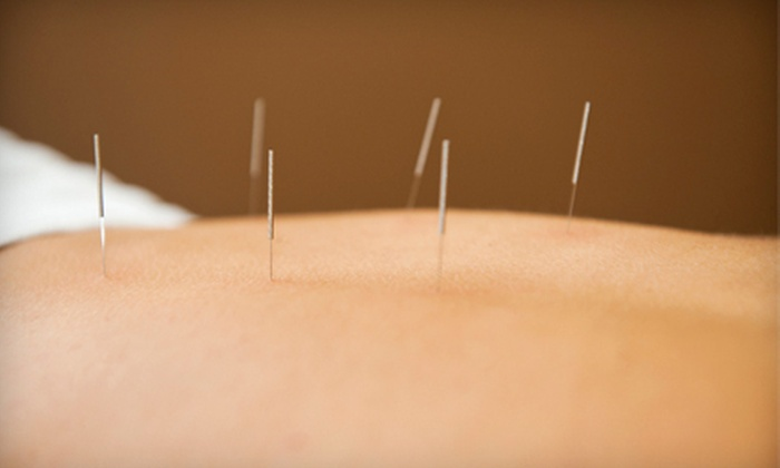 Heron Point Acupuncture - Downtown Santa Cruz: Acupuncture Package with One or Three Acupuncture Treatments at Heron Point Acupuncture (Up to 71% Off)