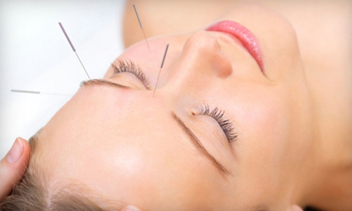 2bwell Clinic - Old Town - Chinatown: One or Six One-Hour Cosmetic Acupuncture Sessions or One-Hour Session for Six Guests at 2bwell Clinic (60% Off)