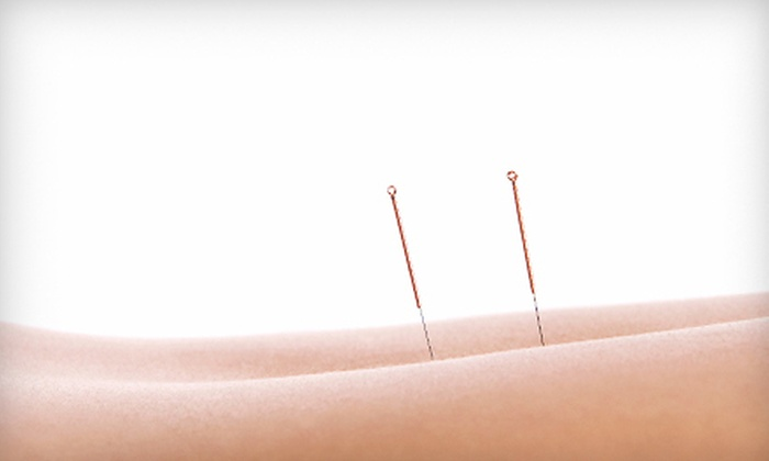 Acupuncture & Massage Clinic - McIntyre Industrial: Two or Four Acupuncture Sessions at Acupuncture & Massage Clinic (Up to 79% Off)
