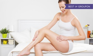 The Rejuvenation Center: Three Laser Hair-Removal Treatments at The Rejuvenation Center (Up to 77% Off). Three Options Available.