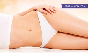 Hyaface Laser and Cosmetic Enhancement Clinic: Laser Hair Removal at Hyaface Laser and Cosmetic Enhancement Clinic (Up to 93% Off). Three Options Available.