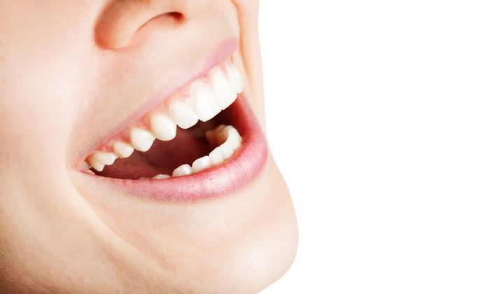 Dream Beauty Boutique - Cumberland: 30-Minute In-Office Teeth-Whitening Session at Dream Beauty Boutique (75% Off)