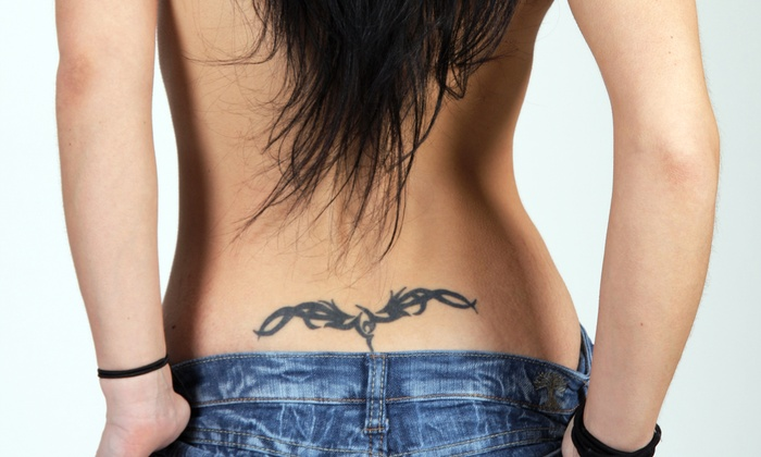 D-Inked - River Mountain: Three Tattoo-Removal Sessions for Area up to 2 or 4 Square Inches at D-Inked (Up to 70% Off)