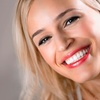 Up to 81% Off Teeth Whitening or Dental Exam