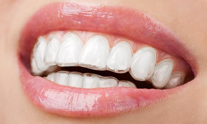 Adc Polimedica - ADC Polimedica: Allineatori dentali invisibili e realizzati su misura per entrambe le arcate