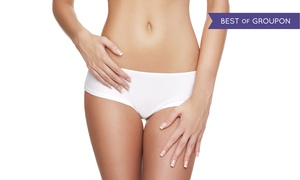 Vo'Skin: Liposuction on a Small or Large Area at Vo'Skin (Up to 73% Off)