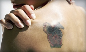 Lazur La Vie: Three Laser Tattoo-Removal Sessions for Up to 3, 6, or 9 Square Inches at Lazur La Vie in Nyack (87% Off)