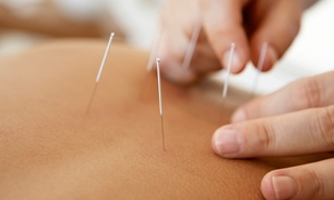 Essex County Acupuncture: One or Three Acupuncture Treatments with an Initial Consultation at Essex County Acupuncture (Up to 69% Off)