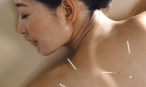 Compassion Acupuncture: $29 for an Acupuncture Package at Compassion Acupuncture ($299 Value)