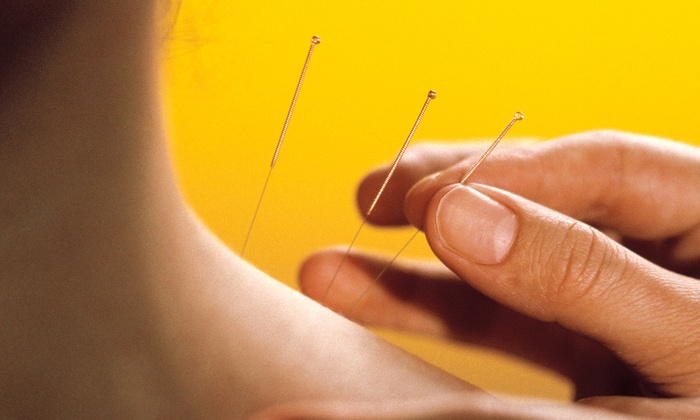 Master Kim's Acupuncture Clinic - Multiple Locations: One or Three Acupuncture Sessions with Initial Consultation at Master Kim's Acupuncture Clinic (Up to 56% Off)