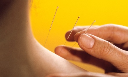 One or Three Acupuncture Sessions with Initial Consultation at Master Kim's Acupuncture Clinic (Up to 56% Off)