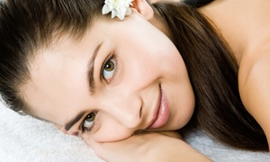 Advanced Aesthetics: Two or Four Chemical Peels or Mircodermabrasion Treatments at Advanced Aesthetics (Up to 63% Off)