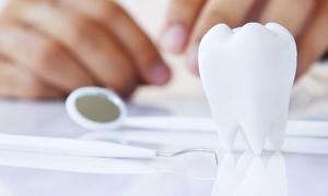 Studio dentistico Vivanti: Visita odontoiatrica con pulizia dei denti, sbiancamento LED e bite anti bruxismo