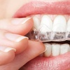 Up to 42% Off 6 Month Smiles Treatment with Retainers