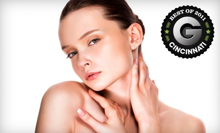 Microdermabrasion Treatment (a $125 value) - Sanctuary DermaSpa in Cincinnati