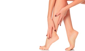 Zweiback Aesthetics: $300 for Two Sclerotherapy Treatments for Spider Veins at Zweiback Aesthetics ($600 Value)