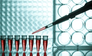 Besalduch: análisis de perfil cardiovascular por 19,95 € y con hemograma por 24,95 € en el centro de Palma