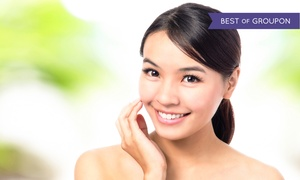 Laser Gentle Medical Spa: One or Three Laser Skin-Tightening Treatments with Lifting Peels at Laser Gentle Medical Spa (Up to 66% Off)
