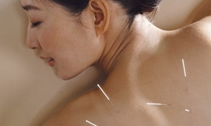 Acupuncture & Systemic Health Center: $45 for Two Area-Specific Acupuncture Sessions with a Consultation at Acupuncture & Systemic Health Center ($370 Value)