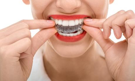 Limpieza bucal con pulido, fluorización, revisión y opción a férula de descarga desde 12,90 € en Málaga Sonríe